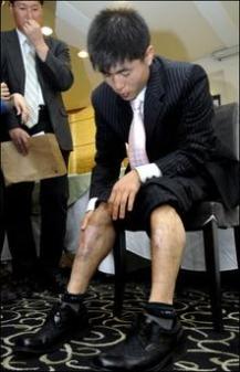 cicatrizes1.jpg